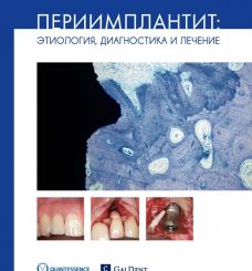 """Книга """"Периимплантит: Этиология, диагностика и лечение"""""""