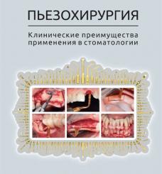 """Книга """"Пьезохирургия. Клинические преимущества применения в стоматологии"""""""
