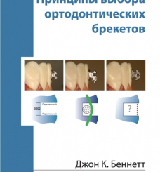 """Книга """"Принципы выбора ортодонтических брекетов"""""""