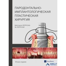 """Книга """"Пародонтально-имплантологическая пластическая хирургия. Второе издание"""""""